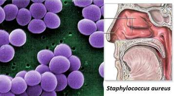 Habitat-and-Morphology-of-Staphylococcus-aureus